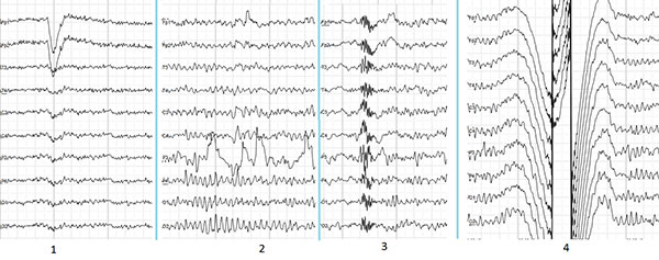 EEG Output